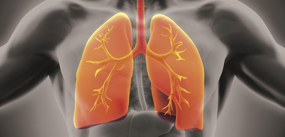 ¿Están relacionados asma, EPOC y contaminación?