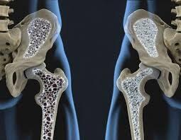 El EPA y la osteoporosis